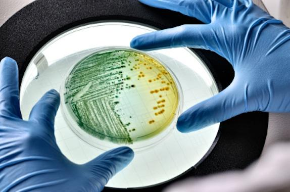 global_biologicalengineering-microorganism-petri-dish-istk.jpg